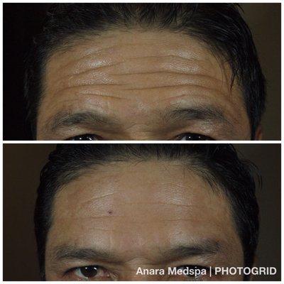 Anara Medspa & Cosmetic Laser Center