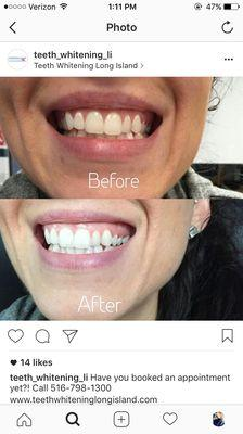 Teeth Whitening Long Island