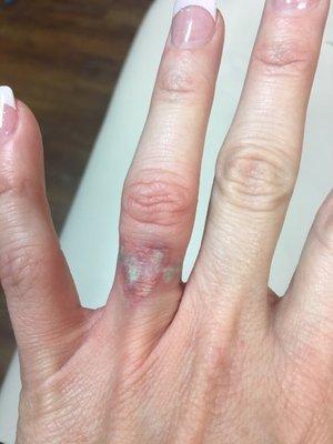 Vanish Laser Tattoo Removal