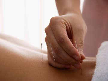 Your Health Acupuncture