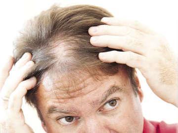 Vista Hair Clinic