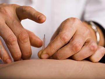 Sacred Tao Acupuncture