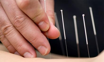 Chaco Acupuncture