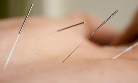 Klimick Acupuncture