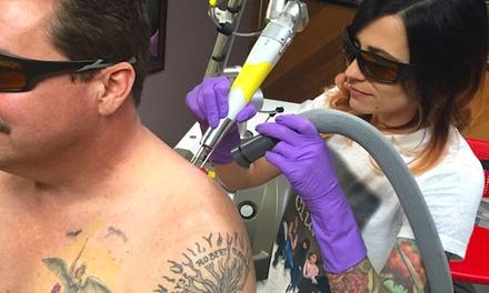 Area 51 - Laser Tattoo Removal
