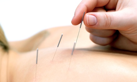 Angie's Acupuncture
