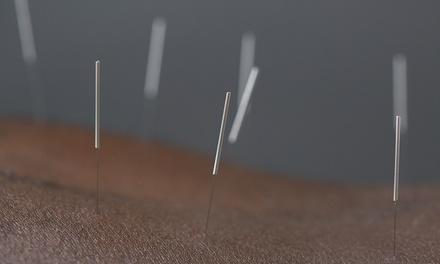 Kirsch Method's Ki Community Acupuncture Clinic