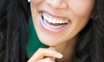 Affinity Dental of La Mesa