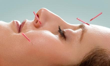 Acupuncture and Hypnosis