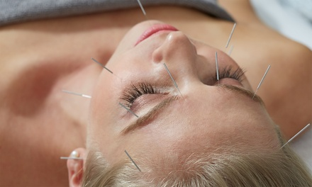 Cross Keys Acupuncture and Healing Arts