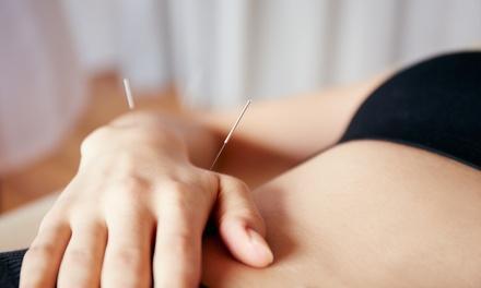 Sanzen Acupuncture