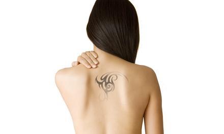 Medermis Tattoo Removal Specialists - San Antonio