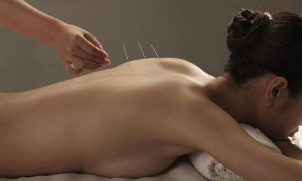Points of Light Acupuncture