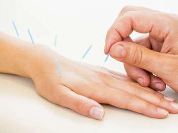 Christa Caputa Acupuncture