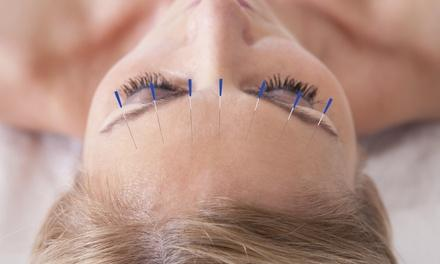 Point of Healing Acupuncture