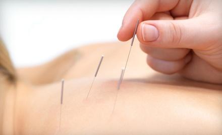 Oceanpoint Acupuncture