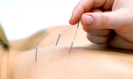 Acupuncture Globl Systems