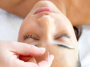 Blue Root Acupuncture