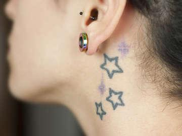 Take It Off Laser Tattoo Removal