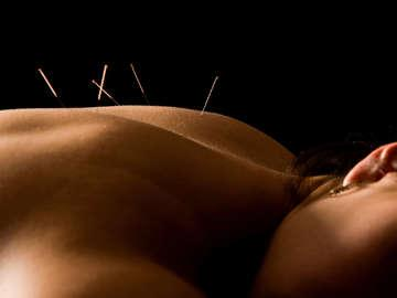 Balanced Life and Acupuncture