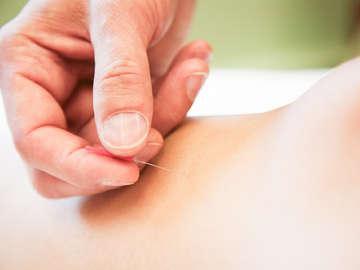 Natural Care Acupuncture & Holistic Medicine