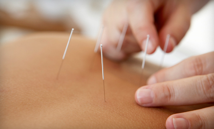 Carella Chiropractic and Acupuncture
