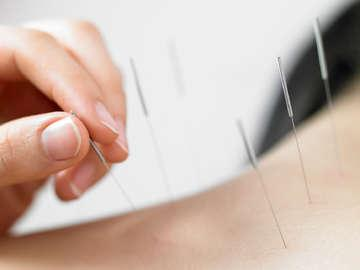 Blue Lotus Acupuncture Clinic