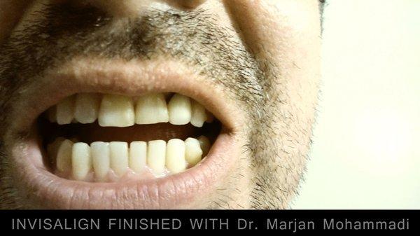 Smile: Dzine