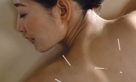 Theus Acupuncture