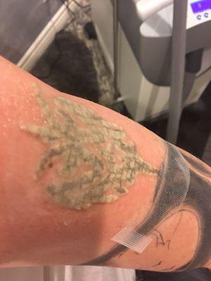 PHAZE Laser Tattoo Removal