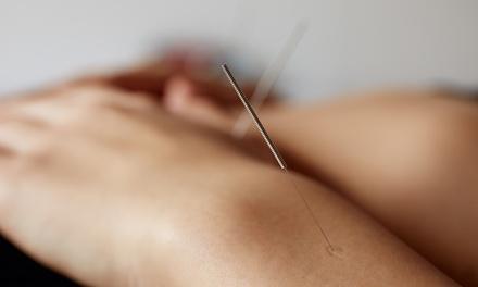 Berkley Acupuncture