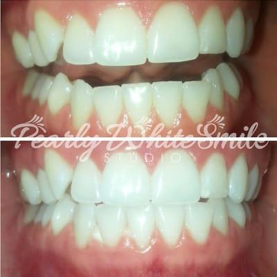 Pearly White Smile Studio