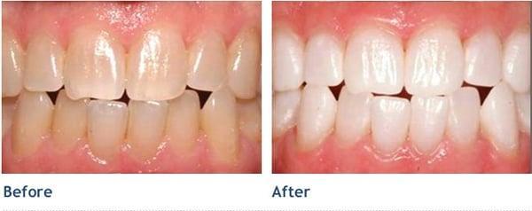 VIP Dental Spas